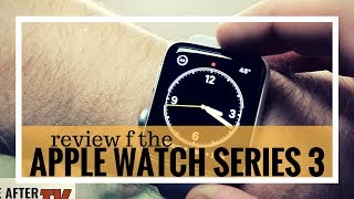 Apple Watch Series 3 Review for the Visually Impaired | Life After Sight Loss