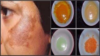 মেছতা দূর করতে ৪ ধরনের বিশেষ প্যাক/How to remove Melasma spot on your face