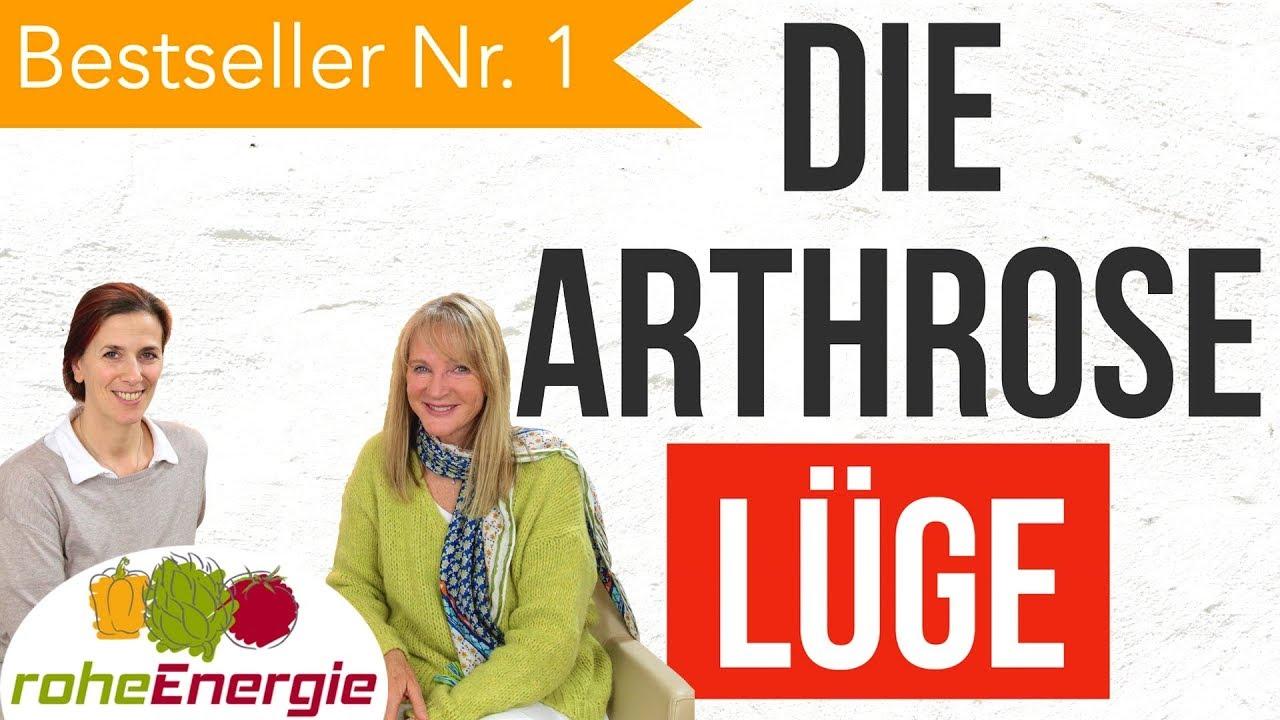 Die Arthrose-Lüge | Platz 1 aller Bücher | Buchvorstellung