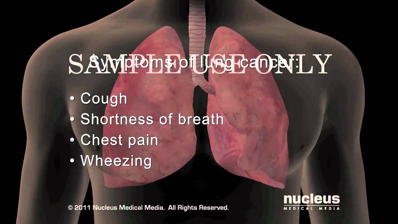 lung cancer symptoms