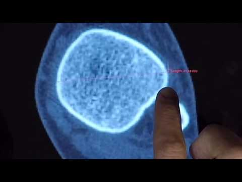 Master Thesis : A Touch Medical Viewer