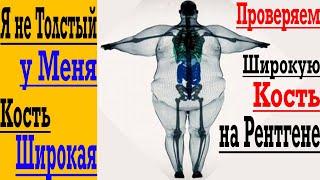 постер к видео Не Могу похудеть из-за ШИРОКИХ костей ! Навсегда останусь ТОЛСТЫМ !