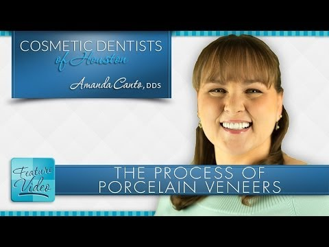 houston-porcelain-veneers-process-at-cosmetic-dentists-of-houston