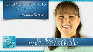 Houston Porcelain Veneers Process at Cosmetic Dentists of Houston Thumbnail