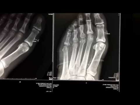 Bone infection, osteomyelitis, in this diabetes patient with poor sugar control.