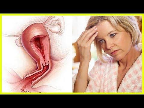 Дицинон при маточных кровотечениях