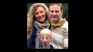Come trasformare la disabilità in forza produttiva! | Sammy Basso | TEDxLecce