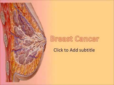 Breast cancer medical powerpoint template youtube for Breast cancer ppt template