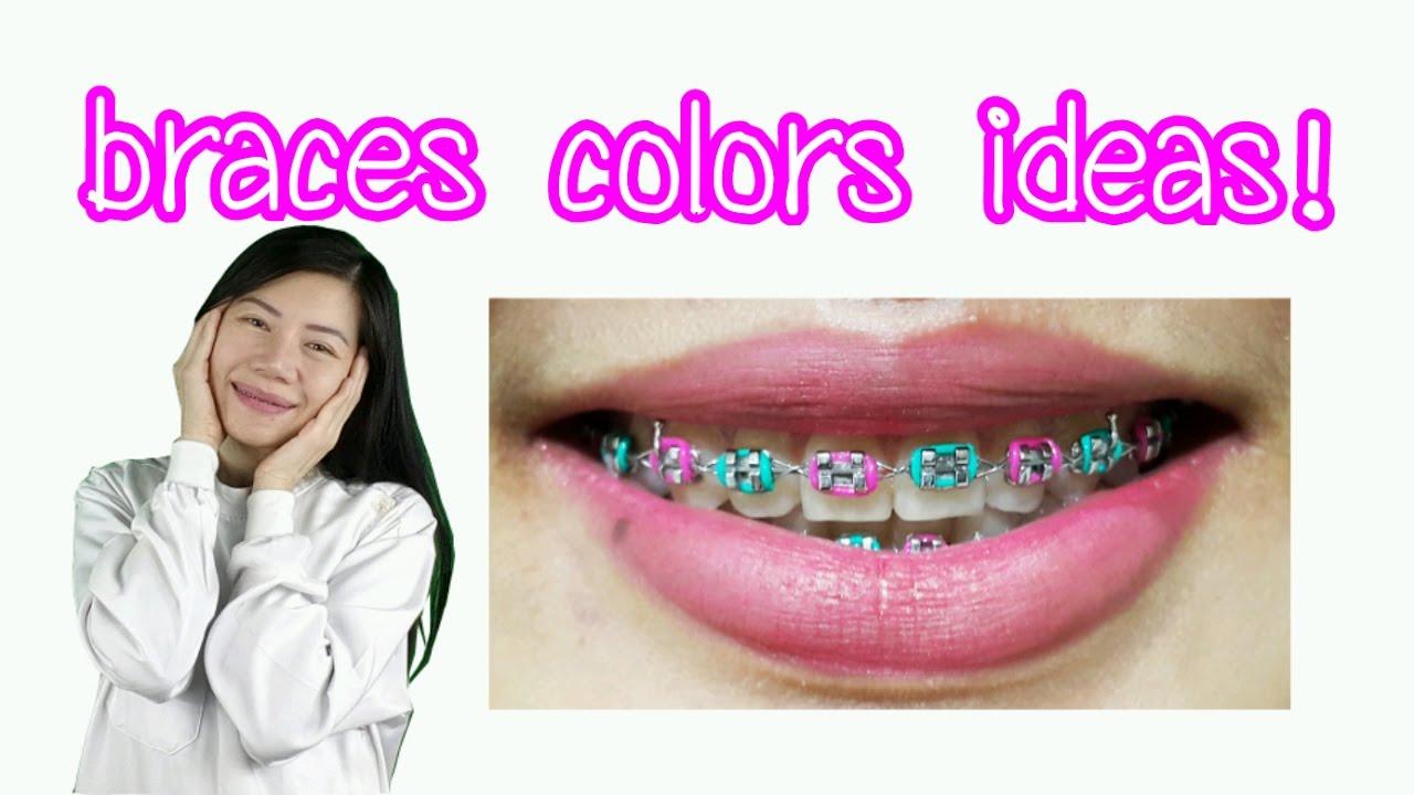 Braces Colors Ideas Youtube