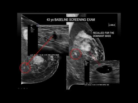 2017 AOCR Radiology Case Review: Bread And Butter Of Breast Imaging - Essentials, Tips & Pearls