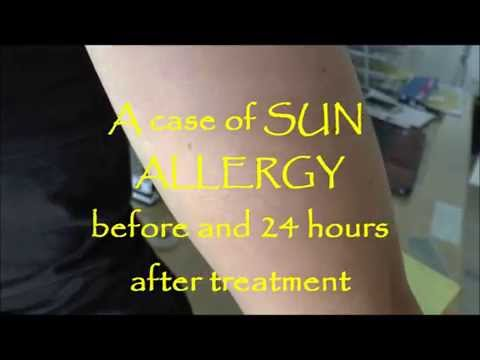 A case of Sun Allergy before and 24 hours after treatment