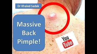 Large Sebaceous Cyst Removal. Cyst Removal Clinic London