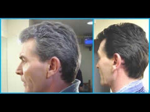 Rid Gray Hair Naturally