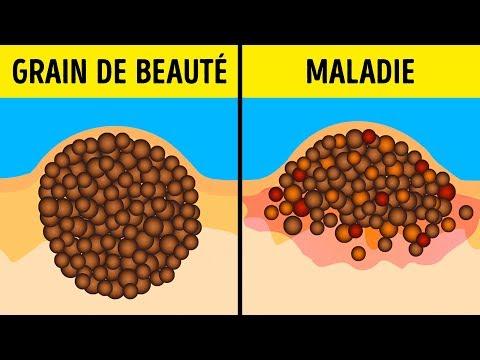 9 Mythes Dangereux Sur Les Grains De Beauté Et Le Bronzage