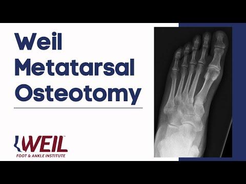 Weil Metatarsal Osteotomy | Weil Foot & Ankle Institute