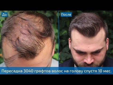 Невероятный результат пересадки волос | 3040 графтов методом FUE спустя 10 месяцев