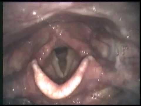 Vision Sciences Flexible Endoscopic Evaluation of