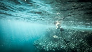 Don't Fear the Fin | Lisa Mondy: Shark Attack Survivor Story