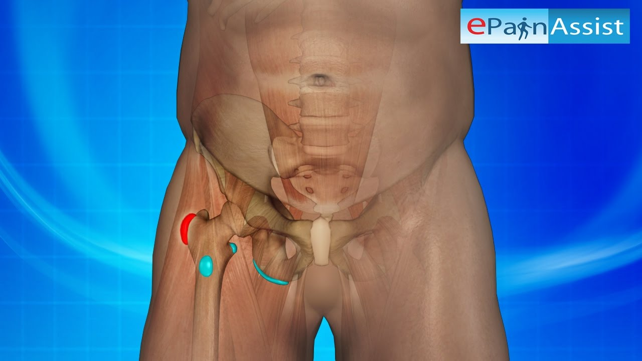 Hip Bursitis 3D Video: Watch How it is Caused, Know Its Treatment ...
