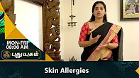 Skin Allergies Causes, Symptoms & Treatment Morning Cafe 18-08-2017 PuthuyugamTv