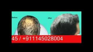 Leading Hair Transplant Surgeon in Delhi India - Dr Narendra Kaushik Thumbnail