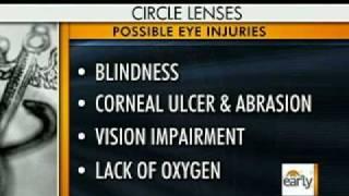 Gaga Contact Lens Controversy