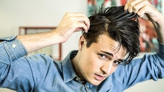 Men's Hair Tips | How to Get Rid of Dandruff