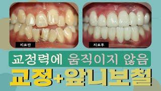 치아 교정력에 움직이지 않는 앞니! 브릿지 크라운 치료