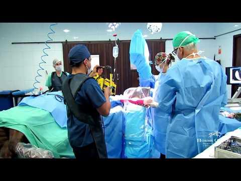 Osteossíntese do Terceiro Metatarso