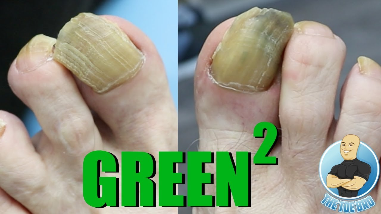 FUNGUS HUMONGUS - TRIMMING FUNGAL TOENAILS - YouTube
