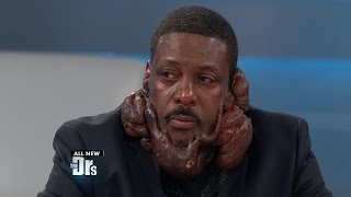 Surprises for Man Covered in Keloids