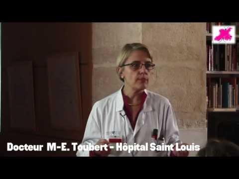 Cancer de la thyroïde différencié : rappels fonctionnels autour de la TSH.