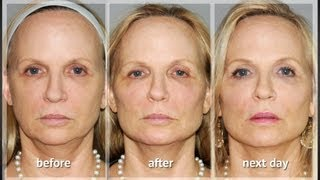 Y LIFT ® 2012 - Catherine | Instant, Non Surgical Facelift