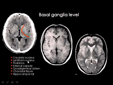 Normal Brain Anatomy Ct And Mri Youtube Youtube