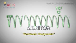 ventricular tachycardia by acls certification institute