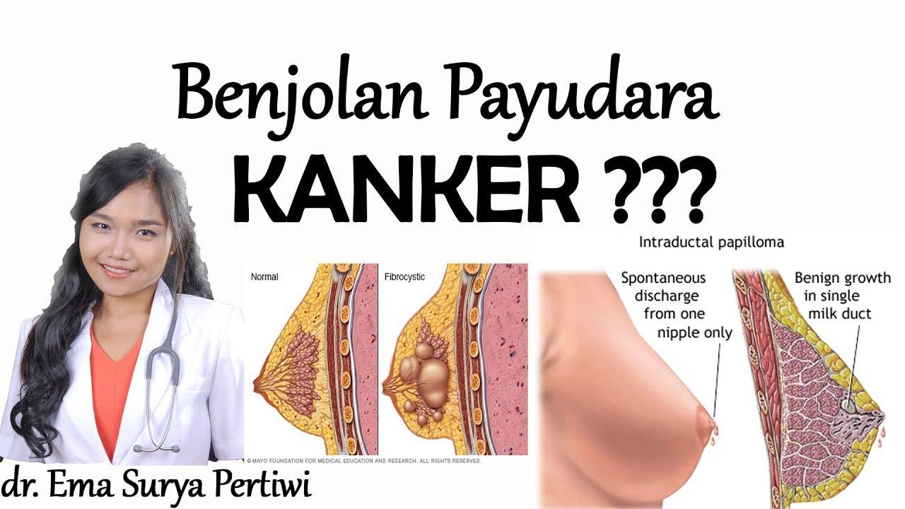 6 Jenis Benjolan Kanker Payudara dan Non Kanker | dr. Ema ...