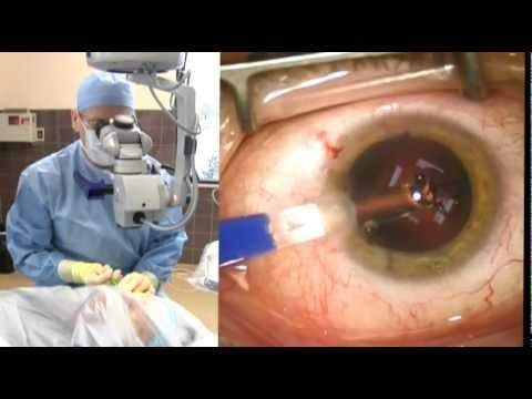Cataract Surgery with Dr. Michael Richie