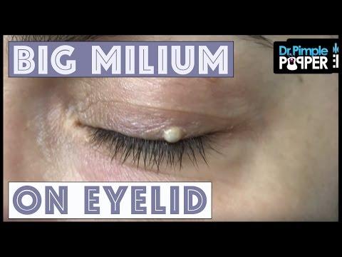 hqdefault - Hard White Pimple On Eyelid