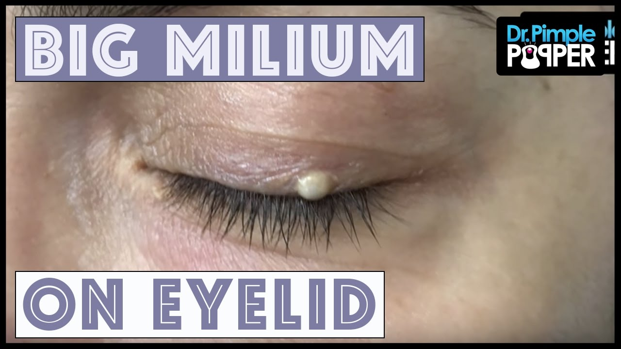 One Big Milium With Dr Pimple Popper Youtube
