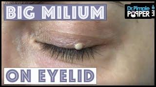 One Big Milium with Dr Pimple Popper