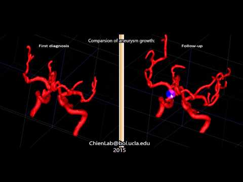 Detection of Aneurysm Growth