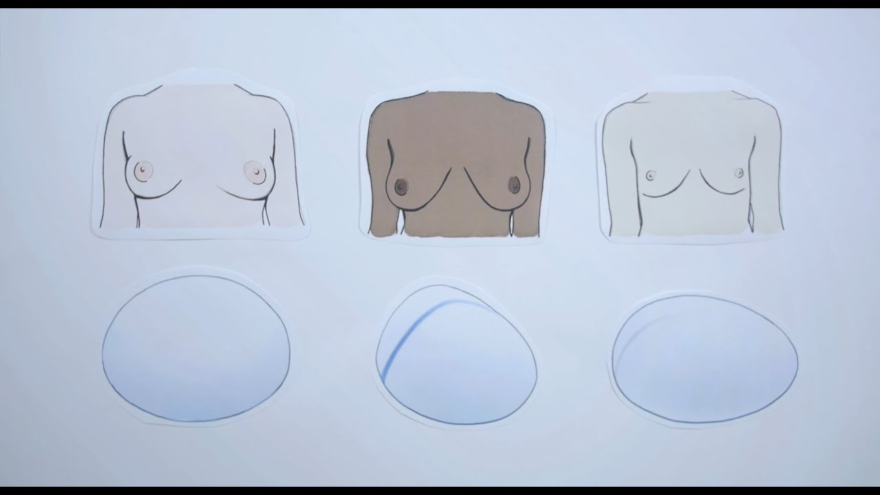 Polytech - What Types Of Breast Implants Are There - Youtube-4676