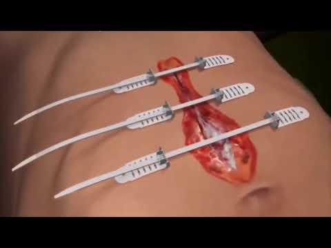 Cirurgia | Fratura de Fêmur ᴴᴰ