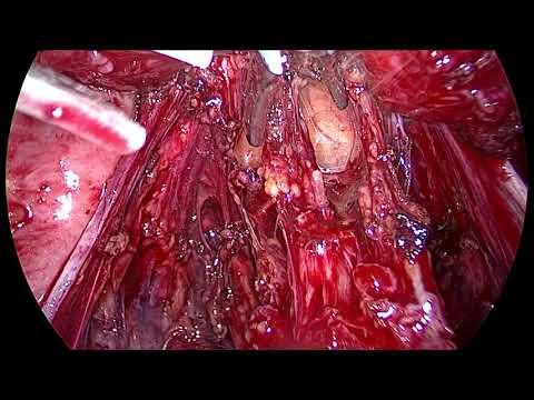 Наружный генитальный инфильтративный эндометриоз.