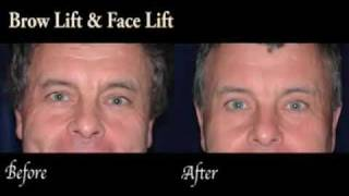 Brow Lift at Pacific Plastic Surgery in Santa Barbara, California