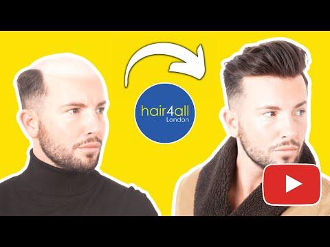 Hair fixing in bangalore dating 1