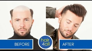 Before & After | Hair System | Non-Surgical Hair Replacement System for Men/Women
