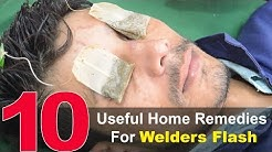 Top 10 Home Remedies To Treat Welder's Flash - Eye Pain Home Remedies