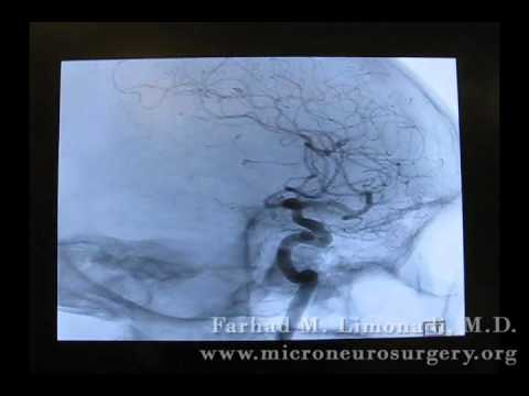 3D Cerebral Angiography
