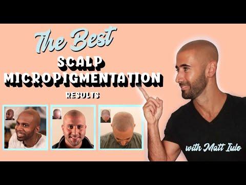 Best Scalp Micropigmentation Results 2020